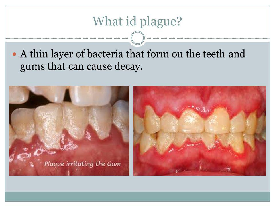 What id plague? A thin layer of bacteria that form on the teeth and gums that can cause decay.