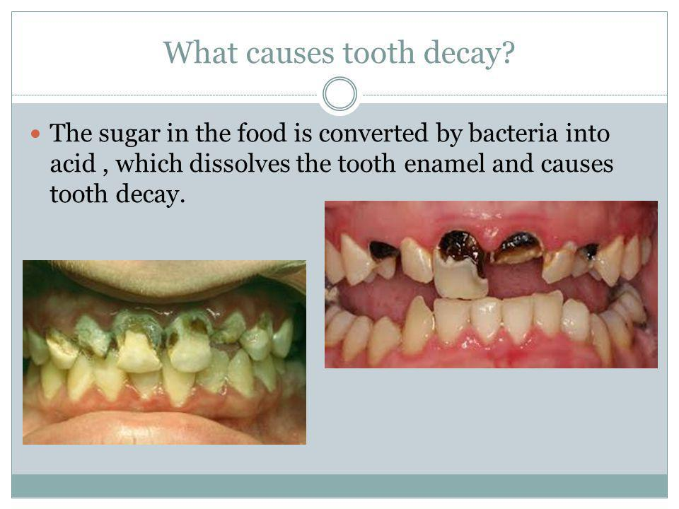 What causes tooth decay.