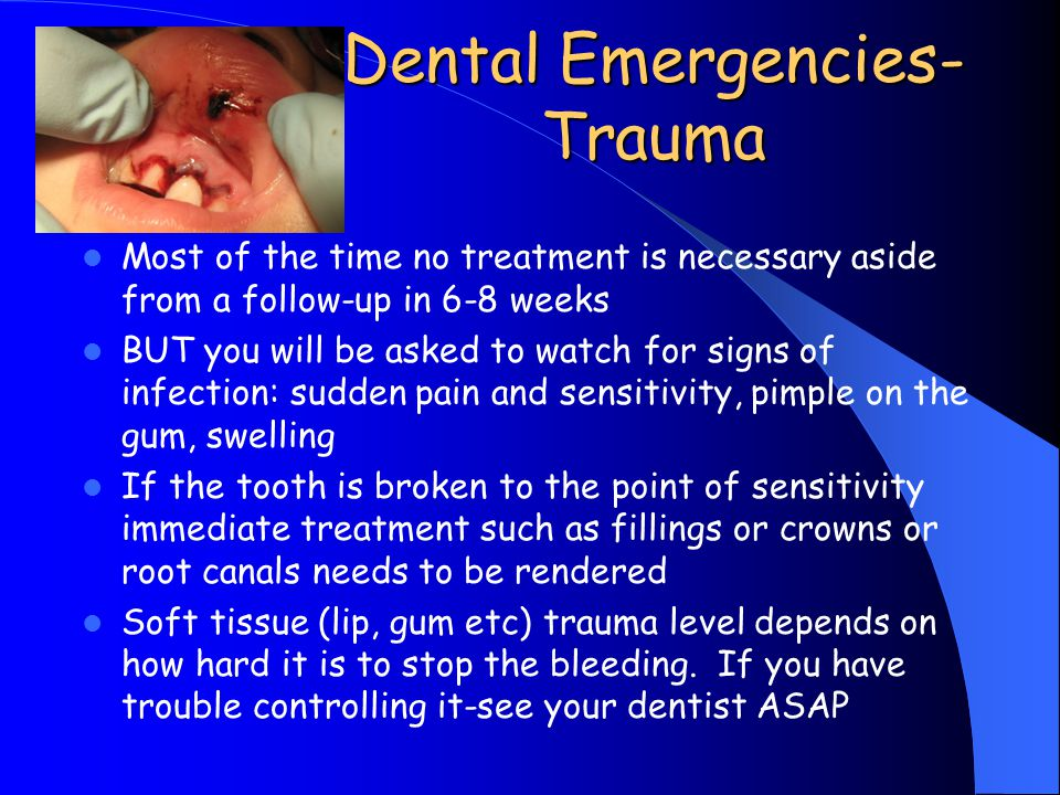 Dental Emergencies- Trauma Most of the time no treatment is necessary aside from a follow-up in 6-8 weeks BUT you will be asked to watch for signs of