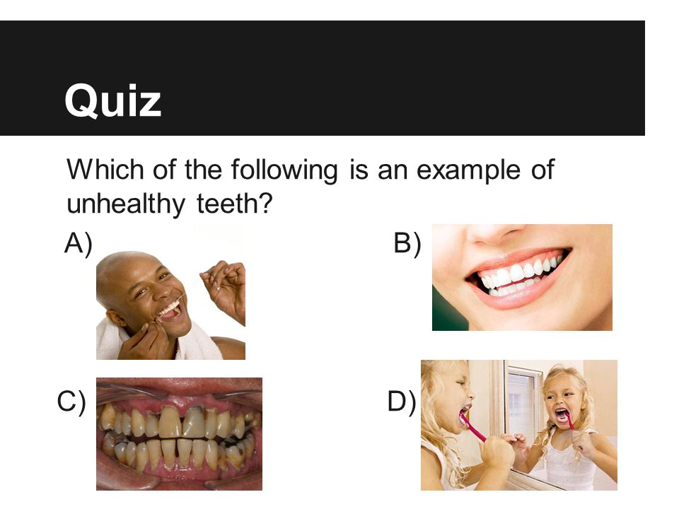 Quiz Which of the following is an example of unhealthy teeth? A) B) C) D)