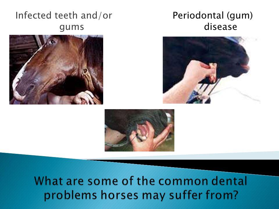 Infected teeth and/or gums Periodontal (gum) disease