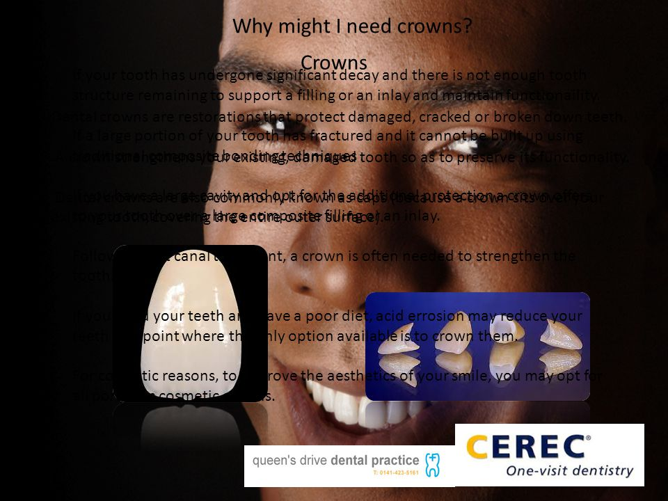 Crowns Dental crowns are restorations that protect damaged, cracked or broken down teeth. A crown strengthens your existing, damaged tooth so as to pr