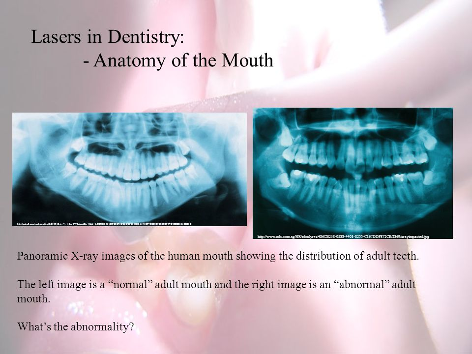 Lasers in Dentistry: - Anatomy of the Mouth http://www.ndc.com.sg/NR/rdonlyres/486CB238-0588-4401-8255-C167DDF872CB/2869/xrayimpacted.jpg Panoramic X-ray images of the human mouth showing the distribution of adult teeth.