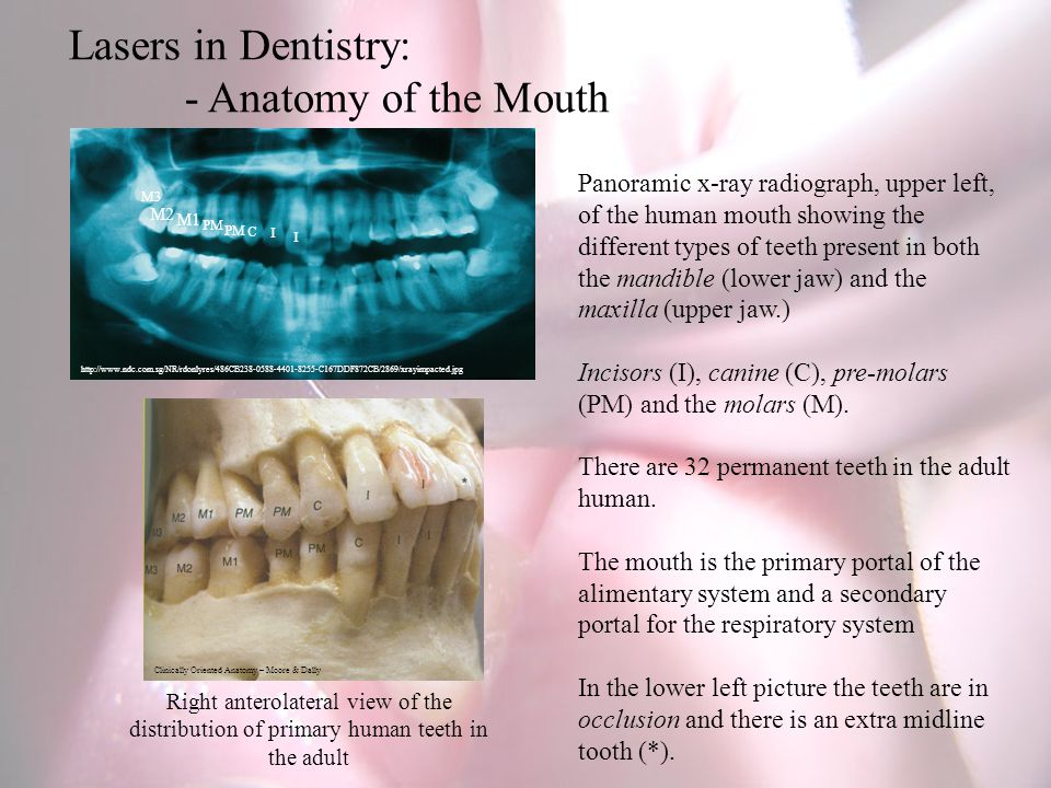 Panoramic x-ray radiograph, upper left, of the human mouth showing the different types of teeth present in both the mandible (lower jaw) and the maxilla (upper jaw.) Incisors (I), canine (C), pre-molars (PM) and the molars (M).