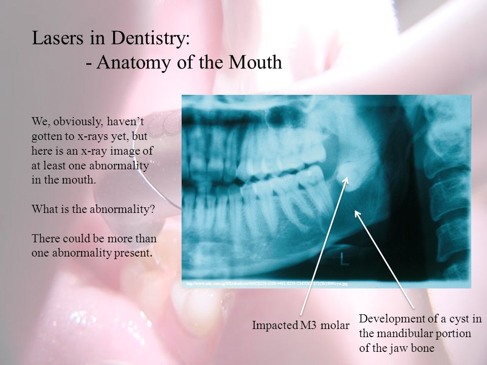 Lasers in Dentistry: - Anatomy of the Mouth http://www.ndc.com.sg/NR/rdonlyres/486CB238-0588-4401-8255-C167DDF872CB/2899/cyst.jpg We, obviously, havent gotten to x-rays yet, but here is an x-ray image of at least one abnormality in the mouth.