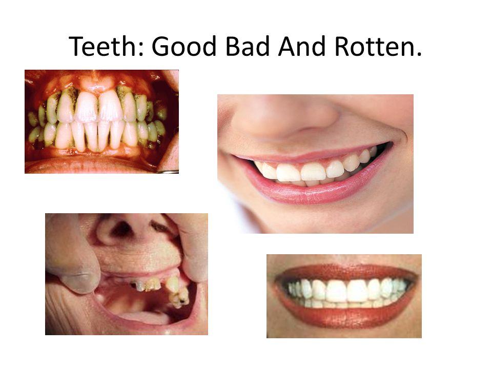 Teeth: Good Bad And Rotten.