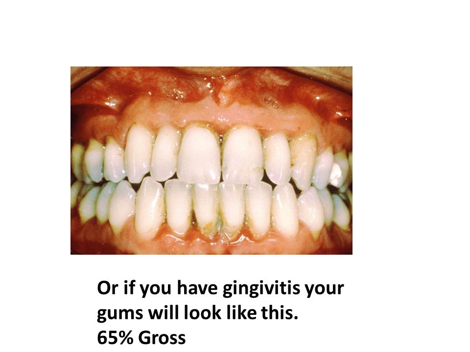 Or if you have gingivitis your gums will look like this. 65% Gross