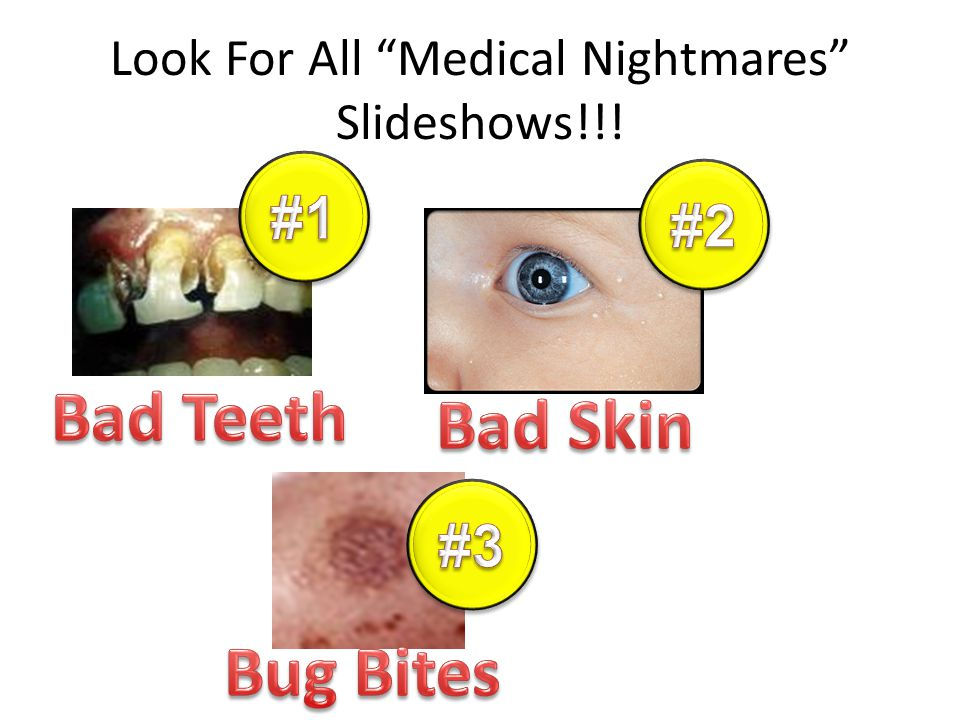 Look For All Medical Nightmares Slideshows!!!