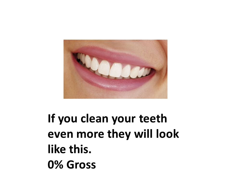 If you clean your teeth even more they will look like this. 0% Gross