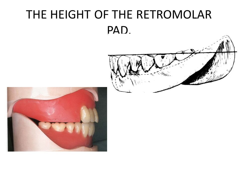 2- RELATIONSHIP BETWEEN UPPER AND LOWER TEETH.