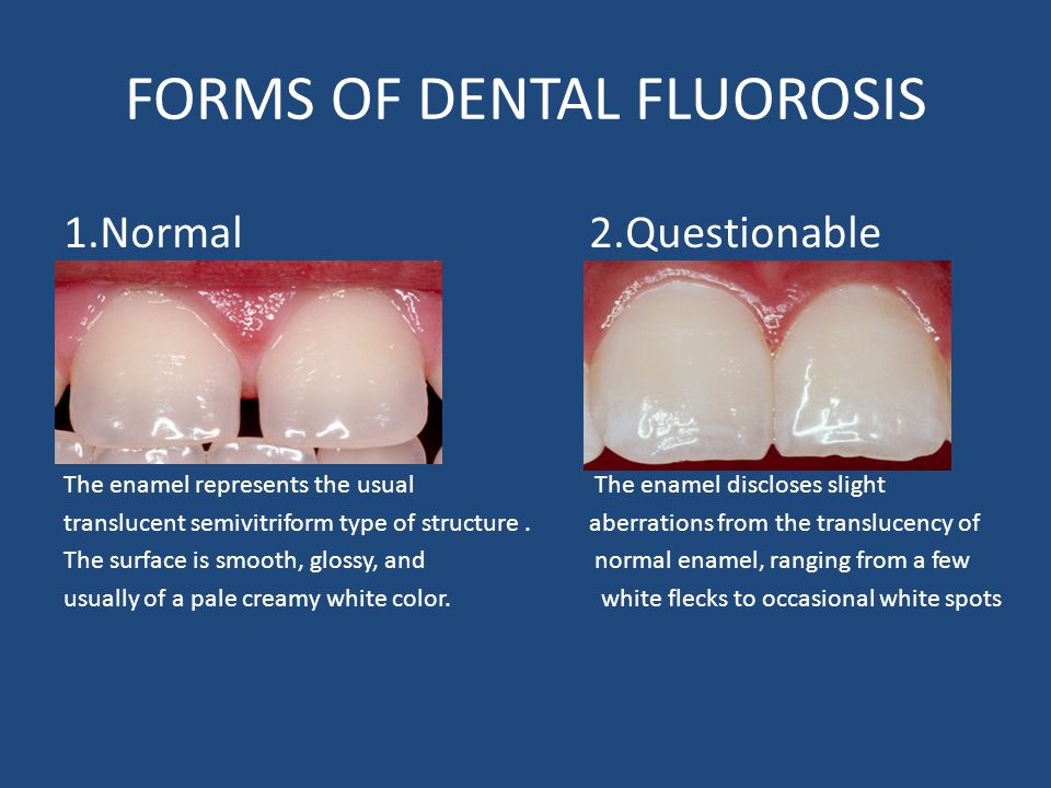 FORMS OF DENTAL FLUOROSIS 1.Normal2.Questionable The enamel represents the usual The enamel discloses slight translucent semivitriform type of structure.aberrations from the translucency of The surface is smooth, glossy, and normal enamel, ranging from a few usually of a pale creamy white color.