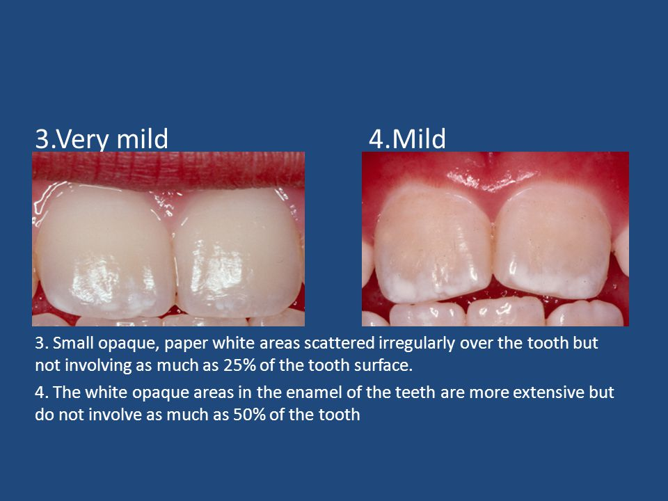 3.Very mild4.Mild 3. Small opaque, paper white areas scattered irregularly over the tooth but not involving as much as 25% of the tooth surface. 4. Th