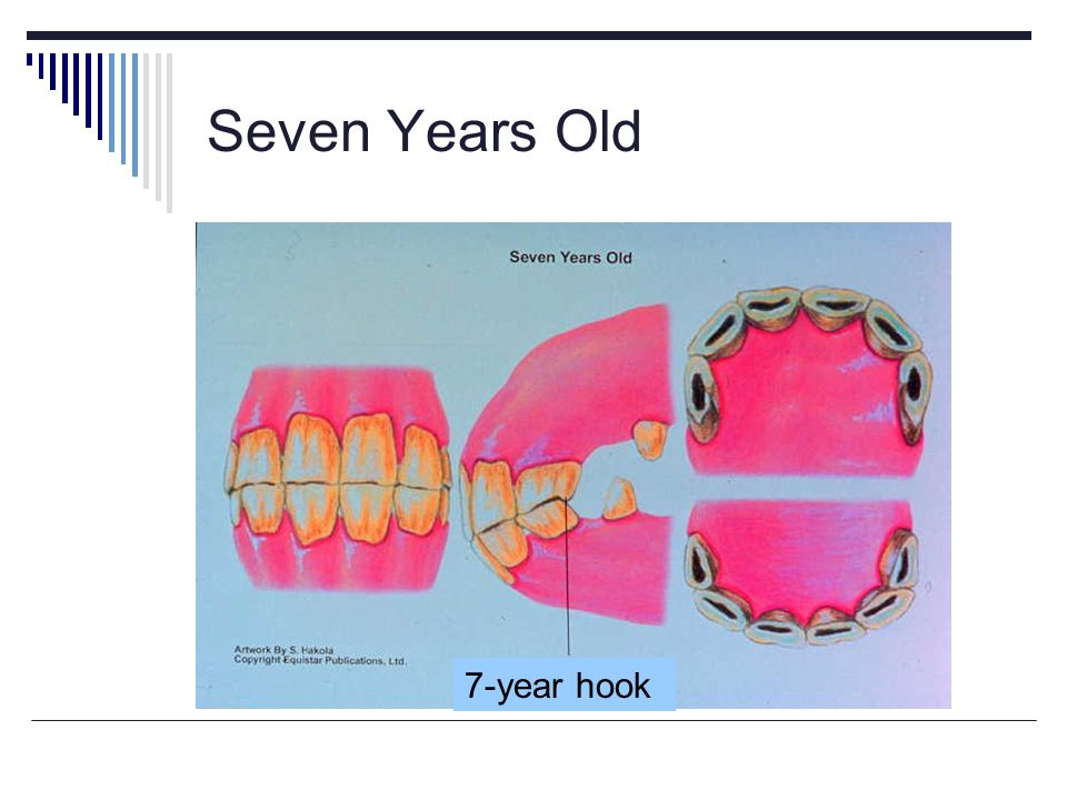 Seven Years Old 7-year hook