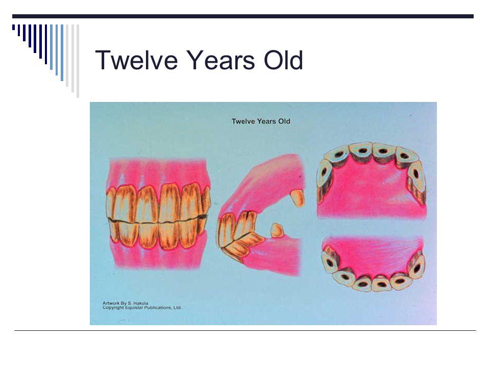 Twelve Years Old
