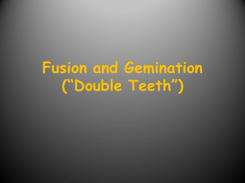 Definitions Fusion is defined as a the conjoining of two teeth.