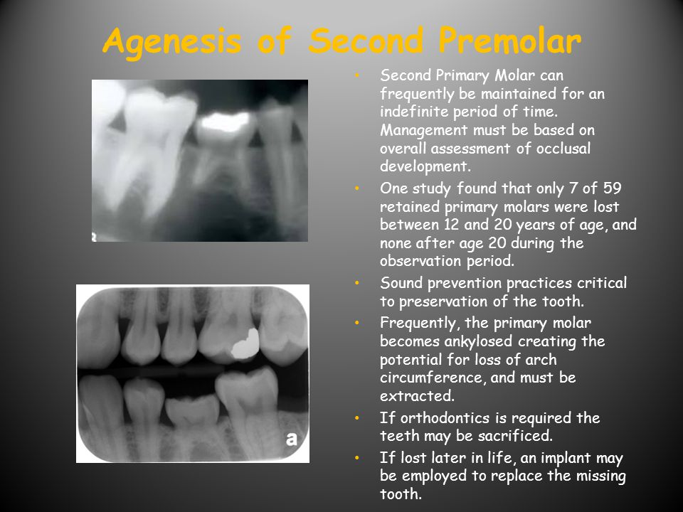 Agenesis of Maxillary Lateral Incisor Management can be complex.