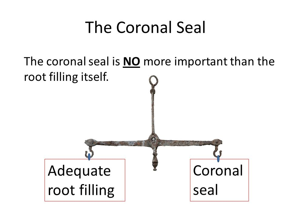 The coronal seal is NO more important than the root filling itself.