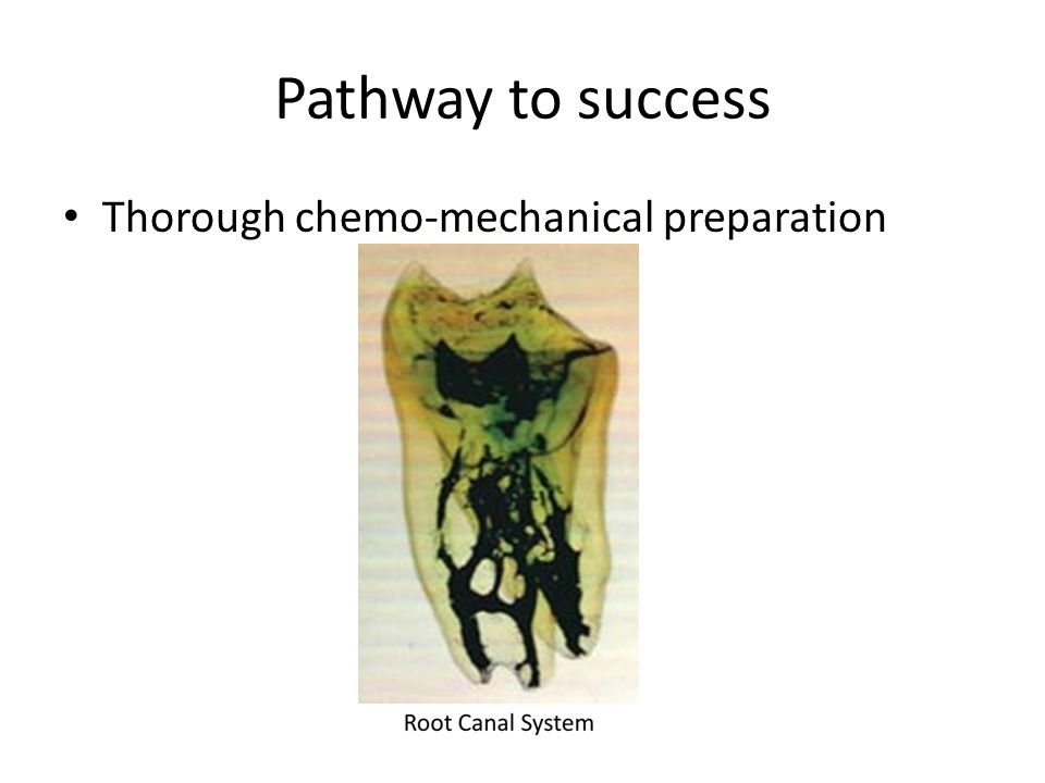 Thorough chemo-mechanical preparation Pathway to success
