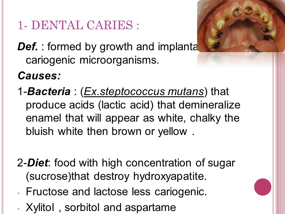 1- DENTAL CARIES : Def. : formed by growth and implantation of cariogenic microorganisms. Causes: 1-Bacteria : (Ex.steptococcus mutans) that produce a