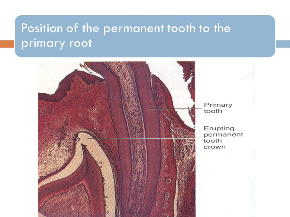 Position of the permanent tooth to the primary root