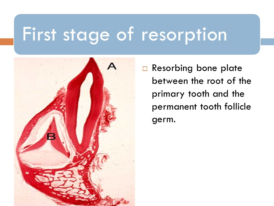 First stage of resorption Resorbing bone plate between the root of the primary tooth and the permanent tooth follicle germ.