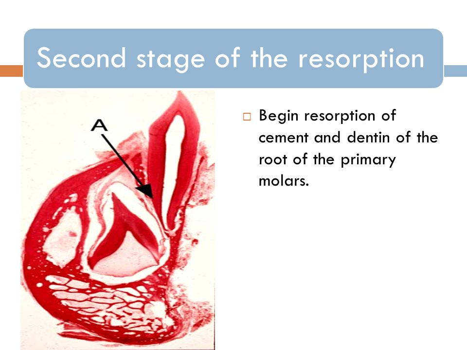 Second stage of the resorption Begin resorption of cement and dentin of the root of the primary molars.