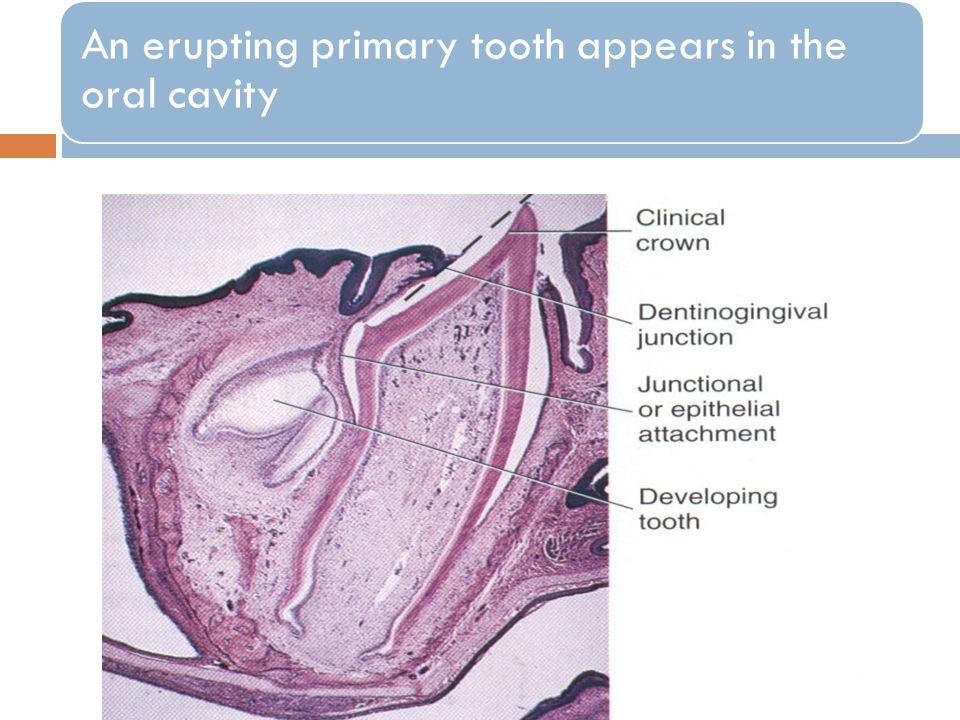 An erupting primary tooth appears in the oral cavity