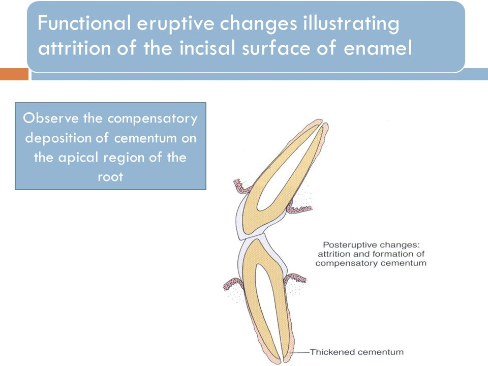 Functional eruptive changes illustrating attrition of the incisal surface of enamel Observe the compensatory deposition of cementum on the apical region of the root
