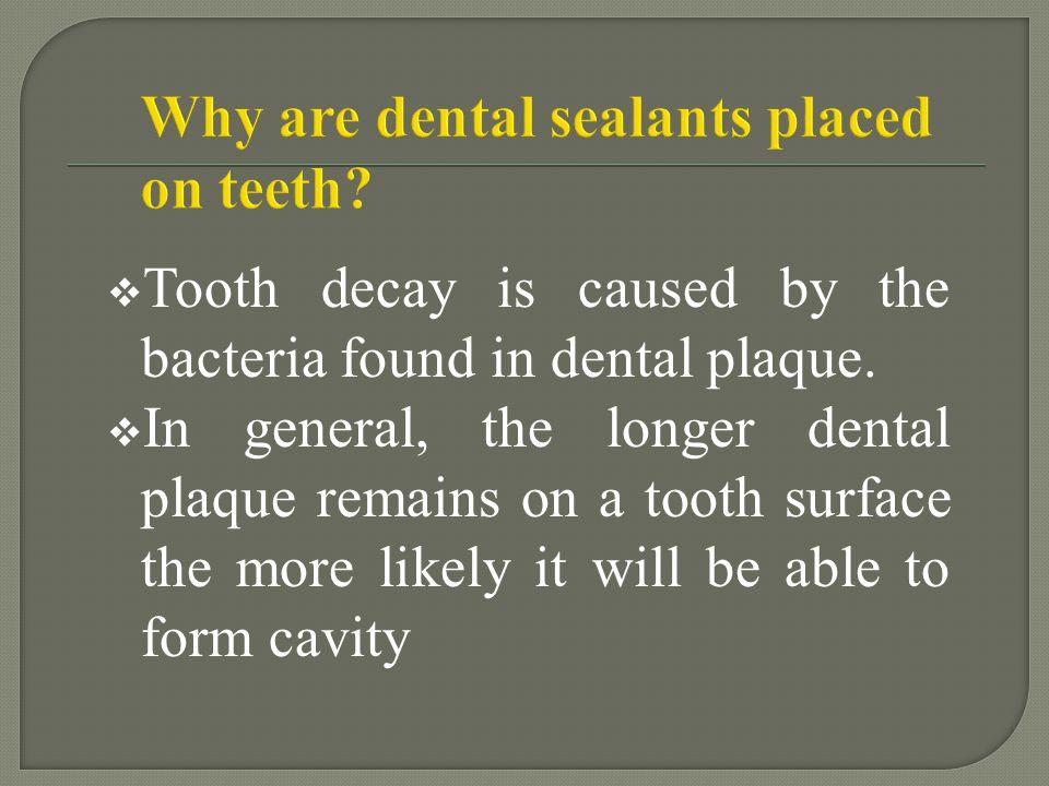 Acid etch gel Permanent teeth – 15-20 seconds Primary teeth – 20-30 seconds Contaminated w/ saliva – 10 seconds