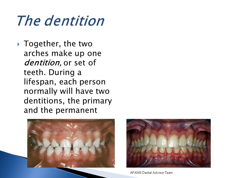 Grinding of the teeth (bruxism) also causes attrition. AFAMS Dental Advisor Team