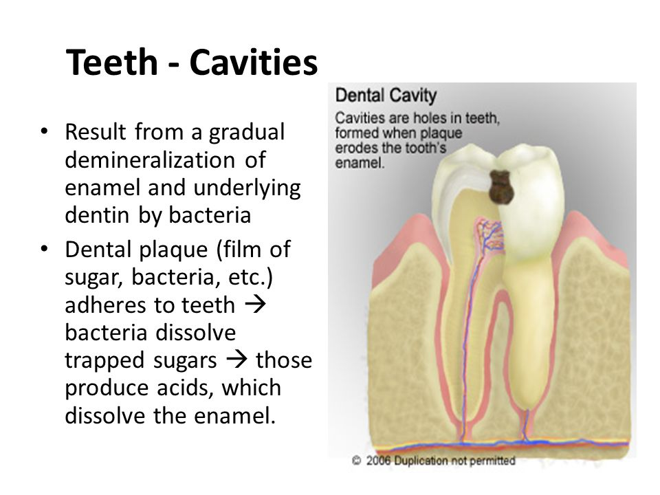 Result from a gradual demineralization of enamel and underlying dentin by bacteria Dental plaque (film of sugar, bacteria, etc.) adheres to teeth bact