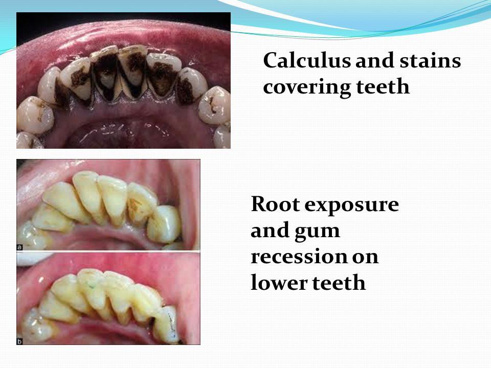 Calculus and stains covering teeth Root exposure and gum recession on lower teeth