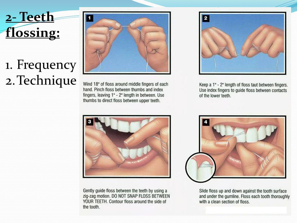 2- Teeth flossing: 1.Frequency 2.Technique