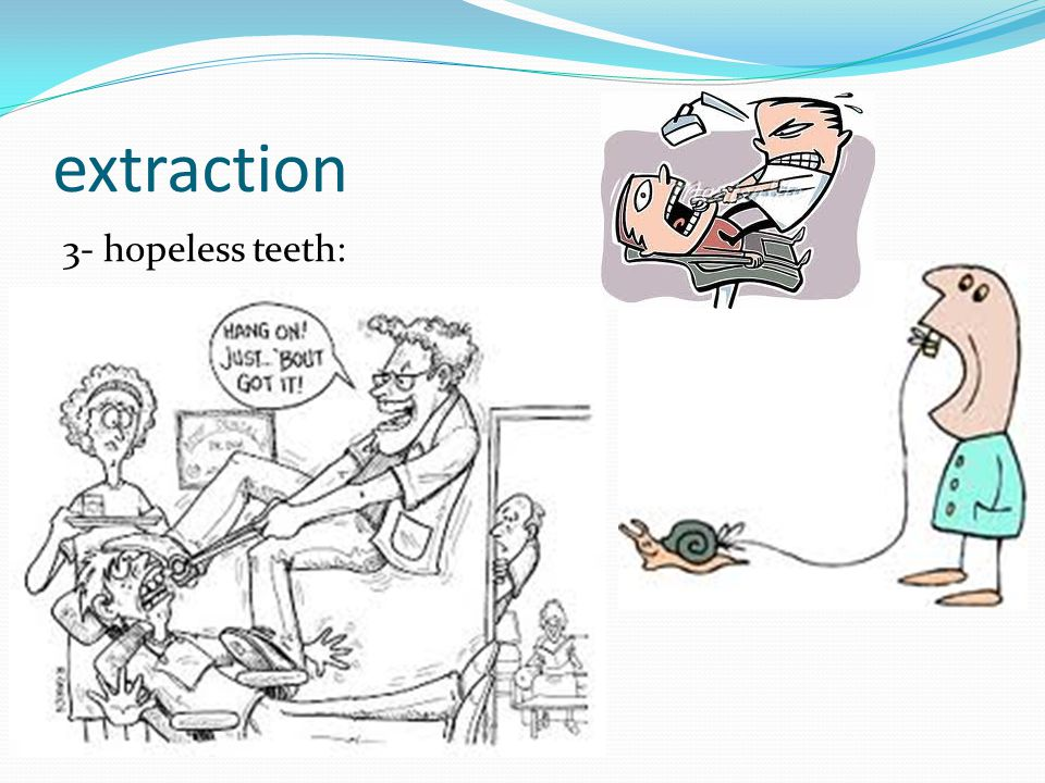extraction 3- hopeless teeth:
