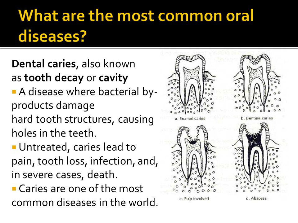 Dental caries, also known as tooth decay or cavity A disease where bacterial by- products damage hard tooth structures, causing holes in the teeth.