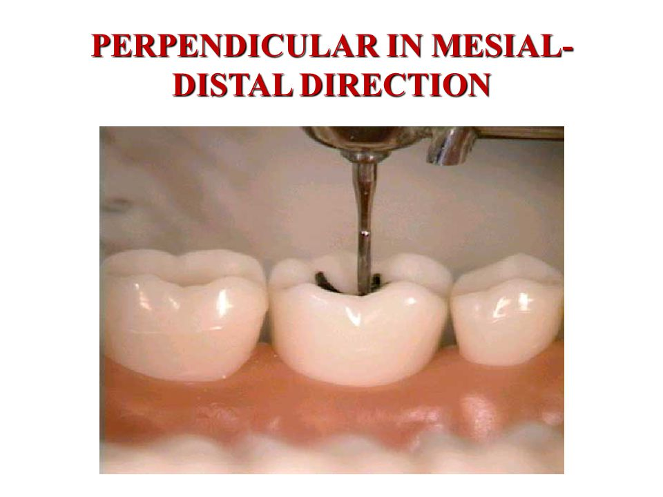 PERPENDICULAR IN MESIAL- DISTAL DIRECTION