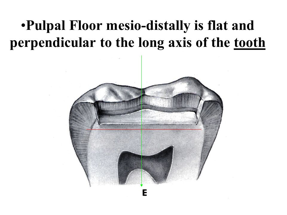 Pulpal Floor mesio-distally is flat and perpendicular to the long axis of the tooth