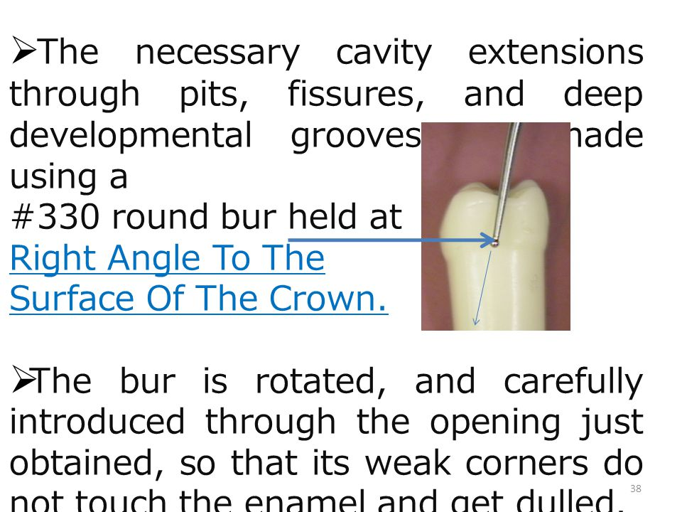 The necessary cavity extensions through pits, fissures, and deep developmental grooves are made using a #330 round bur held at Right Angle To The Surf