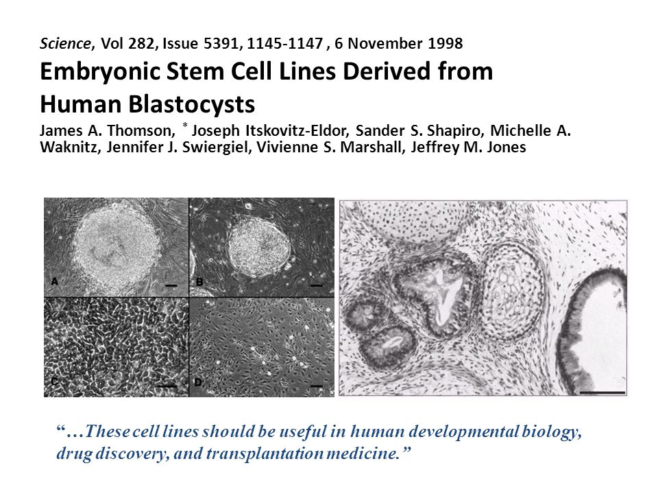 Science, Vol 282, Issue 5391, , 6 November 1998 Embryonic Stem Cell Lines Derived from Human Blastocysts James A.