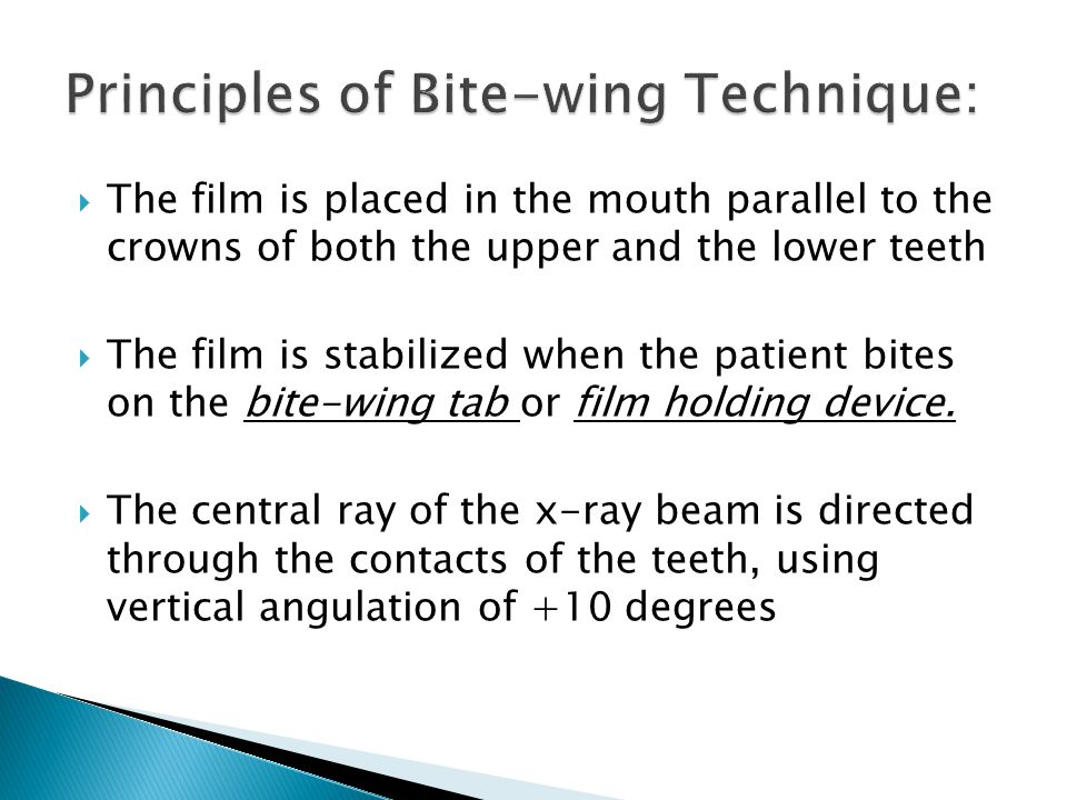 The Bite-wing tab: this is a sticky tab that is placed on the tube side of the film packet.