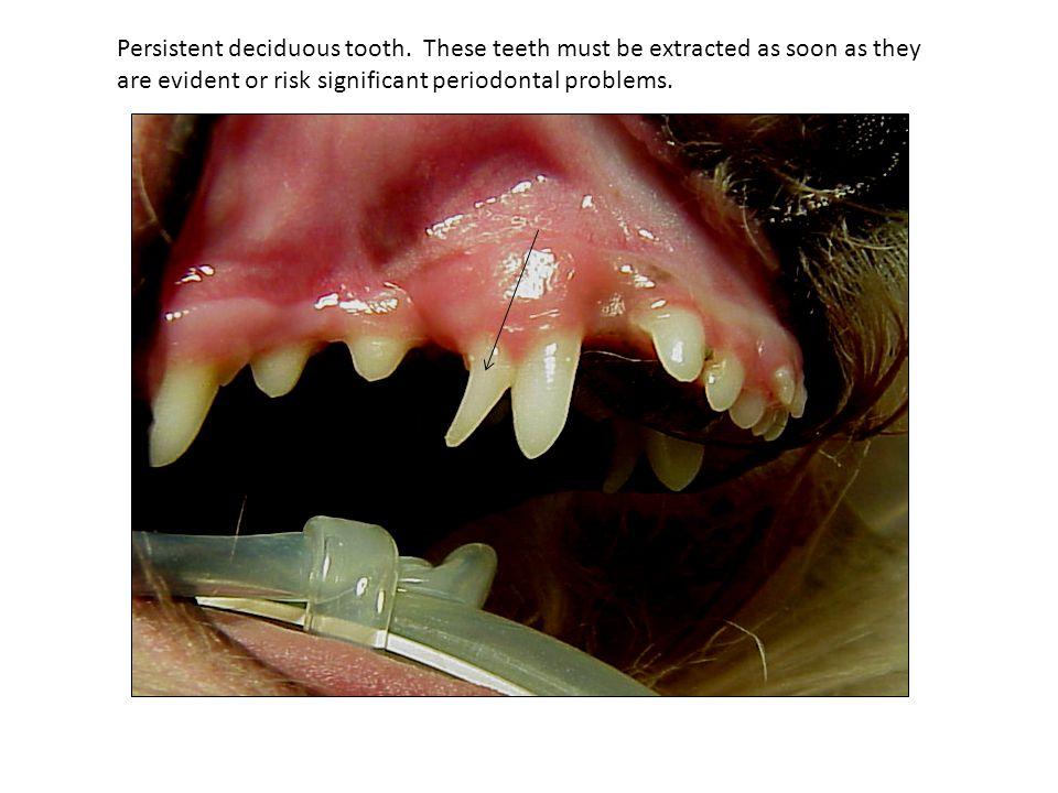 Persistent deciduous tooth.