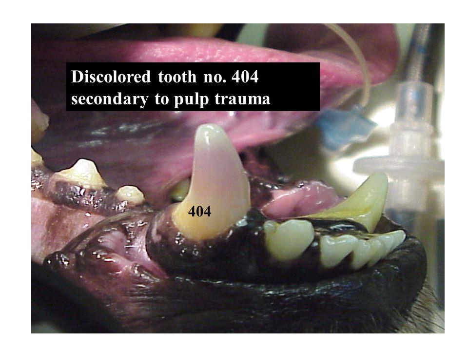 Discolored tooth no. 404 secondary to pulp trauma 404
