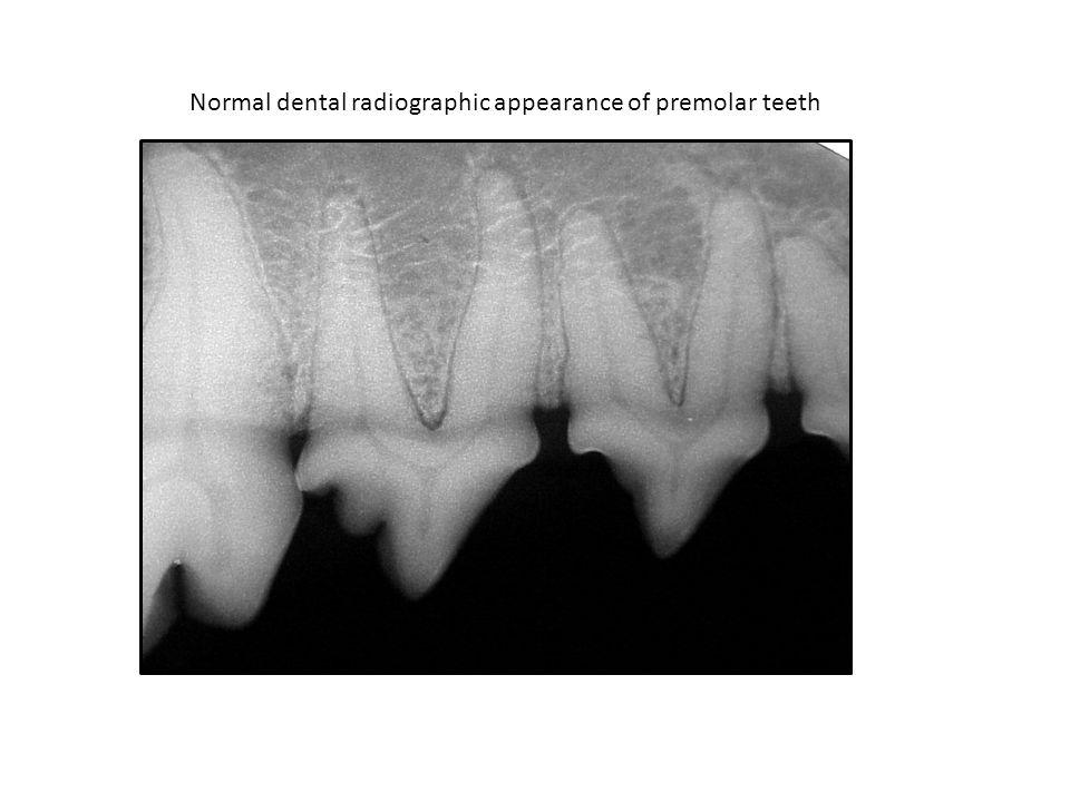 Normal dental radiographic appearance of premolar teeth