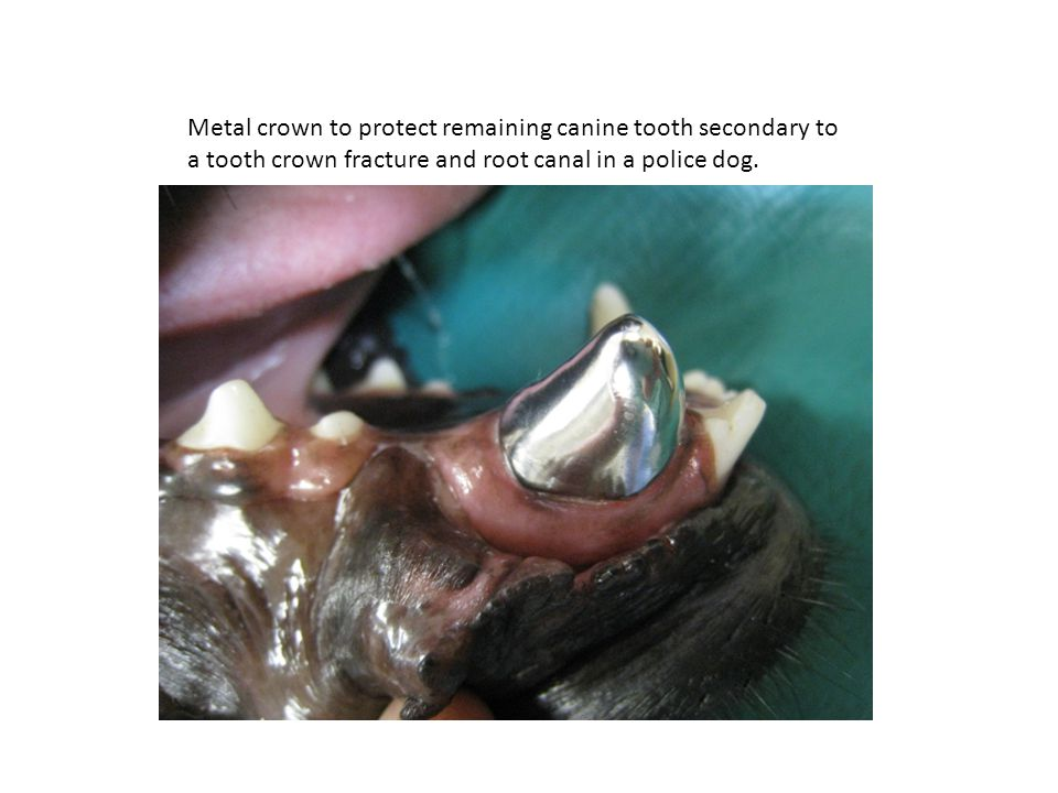 Metal crown to protect remaining canine tooth secondary to a tooth crown fracture and root canal in a police dog.
