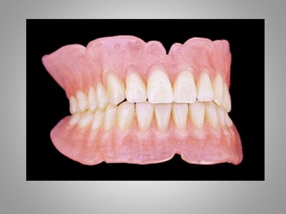 CLASSIC STEPS Initial examination, diagnosis, alginate impressions and photos Custom Tray Fabrication Border Molding and Final Impression w/ custom trays: Wax Rim Fabrication Wax Rim Appointment - Maxillomandibular Records Setting Denture Teeth Esthetic Try in of Denture teeth Processing of Denture Delivery Followup