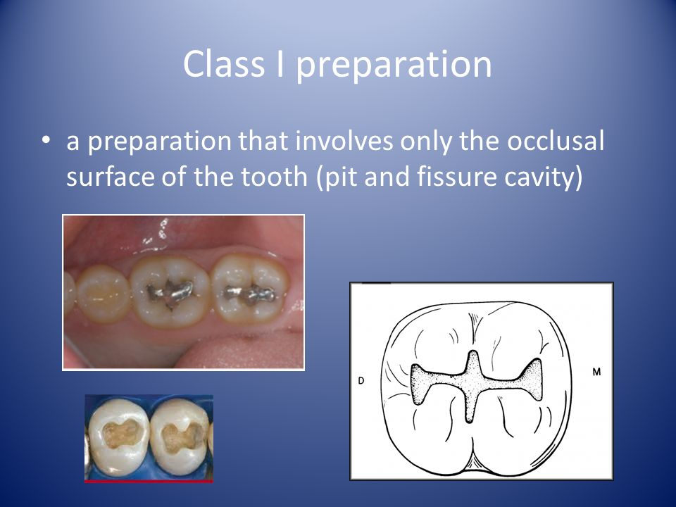 Morphology Terminology Marginal ridge - elevated crest that forms the mesial and distal margins of the occlusal surface in premolars and molars