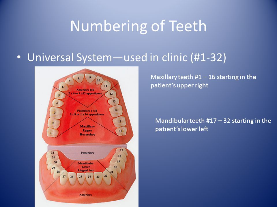 Numbering of Teeth Universal Systemused in clinic (#1-32) Maxillary teeth #1 – 16 starting in the patients upper right Mandibular teeth #17 – 32 starting in the patients lower left