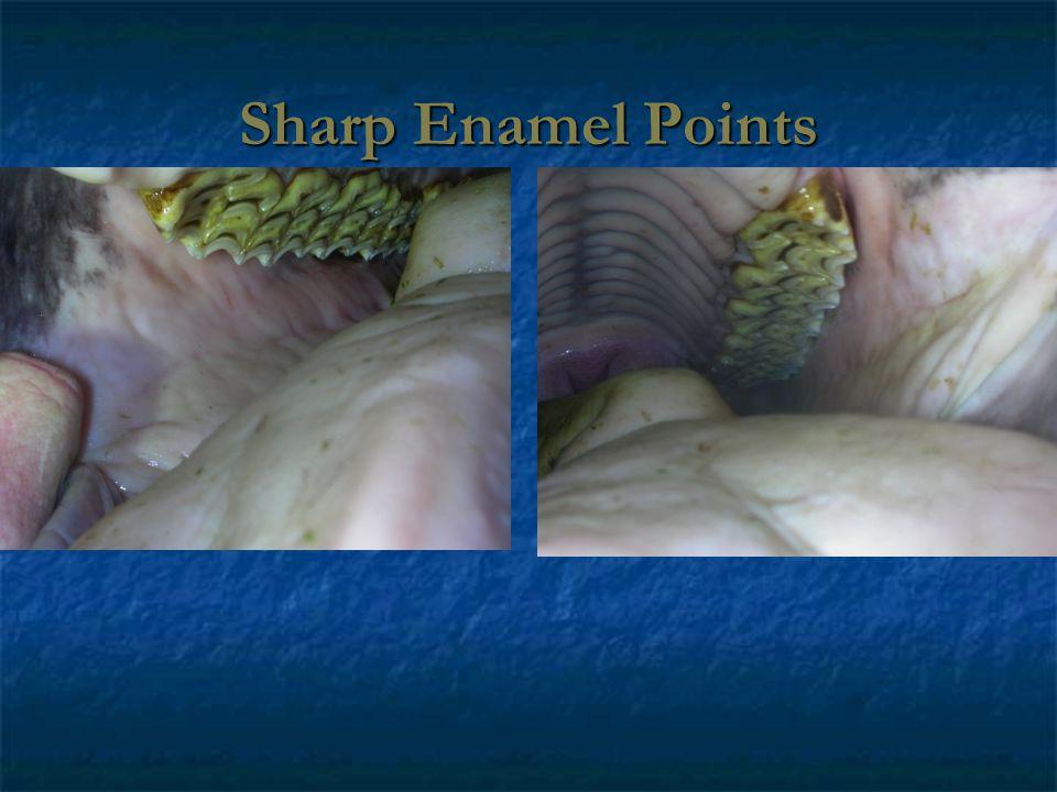 Sharp Enamel Points