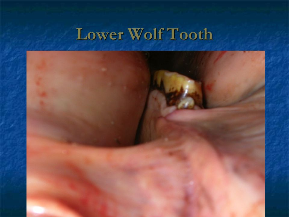 Lower Wolf Tooth
