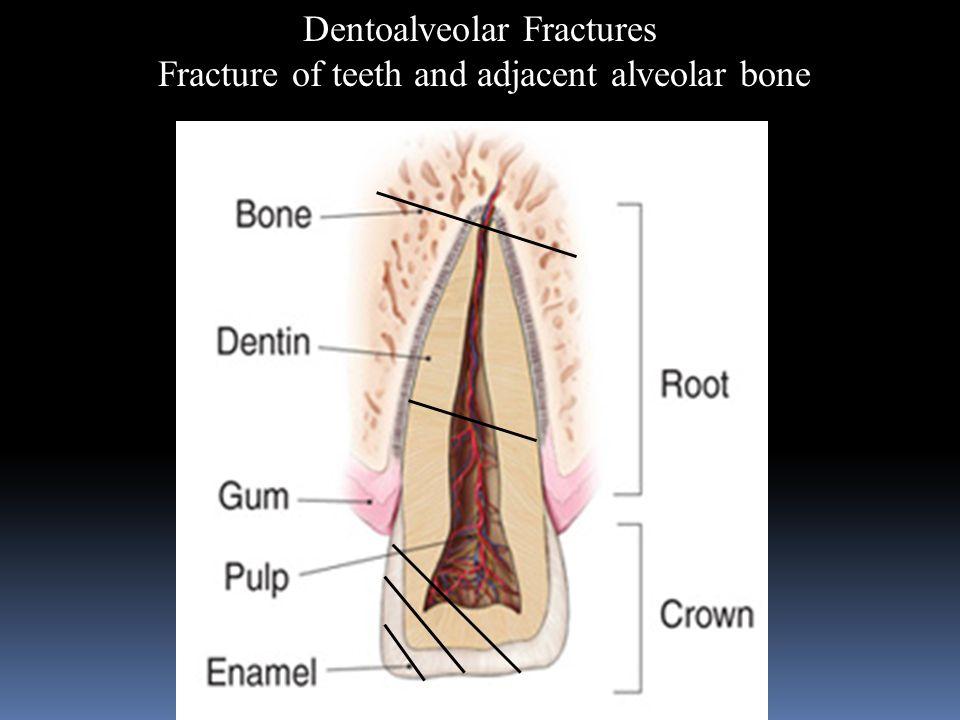 Dentoalveolar Fractures Fracture of teeth and adjacent alveolar bone